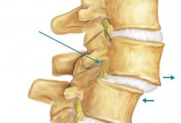 Spondylose der Halswirbelsäule: Ursachen, Symptome und Behandlungen