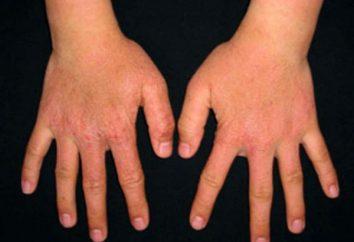 Maść na egzemę na rękach: samoleczenie jest niebezpieczne!