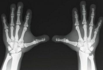 Ostéosclérose – quel est-il? Chondral osteosclerosis: causes, symptômes et caractéristiques de traitement