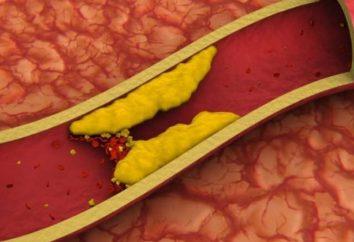 Dieta para el colesterol alto en la mujer: platos y recetas. Cómo comer con colesterol alto
