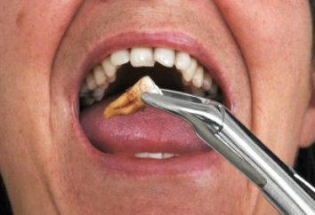 Cosa fare dopo l'estrazione del dente – modi per fermare il sangue e guarire una ferita
