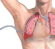 Drenaż w medycynie: co to jest, w jaki sposób i dlaczego używać
