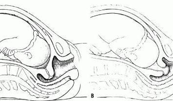 cervicali dilatazione 2 dita durante il parto? I sintomi della dilatazione cervicale