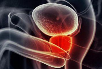 przerost prostaty: Przyczyny i leczenie