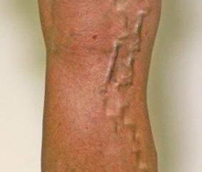 Hirudotherapy z żylakami. Funkcje procedury