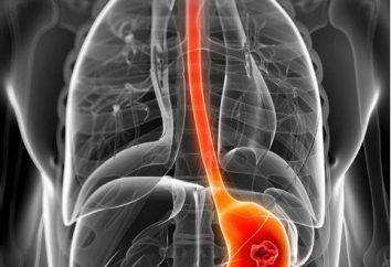 Anatomie des Magens. Struktur und Funktion des menschlichen Magens