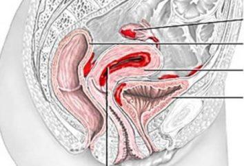 Trattamento dell'endometriosi con rimedi popolari. Recensioni sui trattamenti a base di erbe