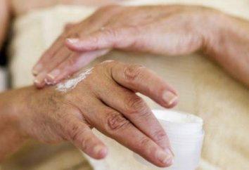 Eczema sulle mani. Come curare una malattia?