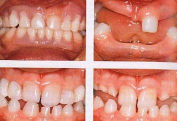 prothèses dentaires: les clasp étapes de la fabrication et de la technologie