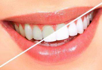 Dents Laminage: description de la procédure, commentaires