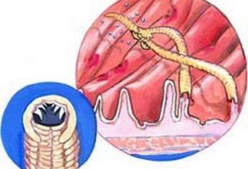 Die Hauptmerkmale von Würmern bei Kindern