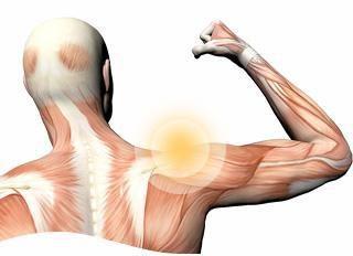 Plexoplexe de la plexopathie brachiale: symptômes et traitement