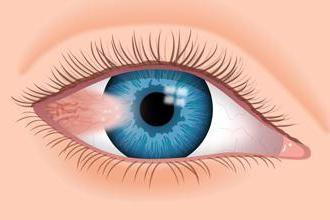 Film w oku u ludzi: Przyczyny i leczenie