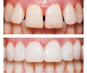 carillas modernos en los dientes: lo que es