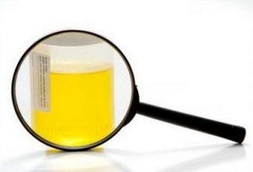oxalato apareceu na urina da criança: causas, sintomas, tratamento