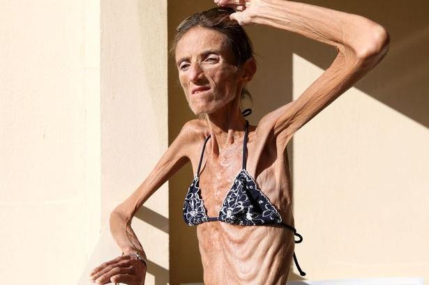 Dünnste Frau Der Welt