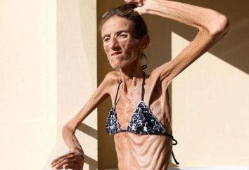 Bardzo cienkie kobieta na świecie. Ostrożnie Valery Levitin