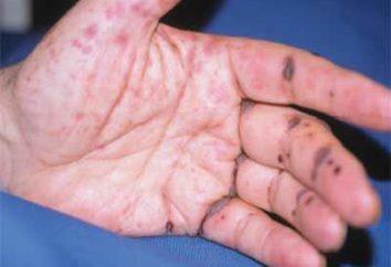 Objawy i przyczyny zapalenia naczyń