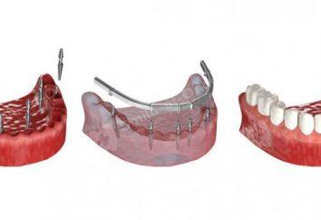 Nuovi denti per 3 giorni – l'impianto basale di una nuova generazione