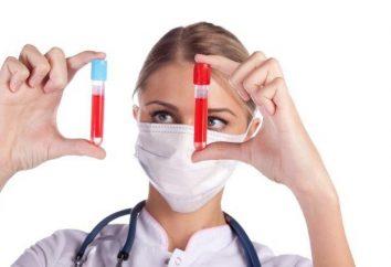 L'analyse générale ou commune d'un sang – à l'estomac vide ou non? Recommandations du docteur