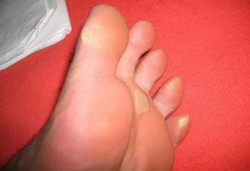 Quali sono i tempi curare i calli sui piedi per mezzo di medicina tradizionale