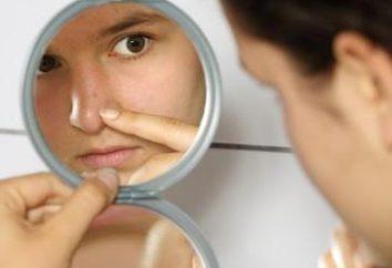 Przyczyny zaskórników. Jak usunąć czarne kropki na nosie