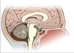 Przysadka: co to jest i jaki jest jej wpływ na organizm?