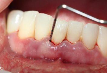 Le traitement de la parodontite dans la maison de remèdes populaires (commentaires)