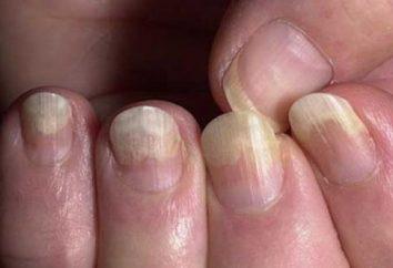 Onicomicosis – ¿qué es? Onicomicosis uñas: el tratamiento en casa