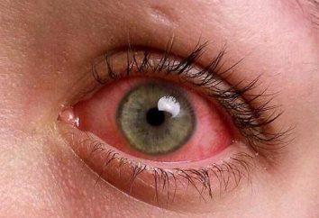 Rougeur des yeux chez les enfants: causes et traitement