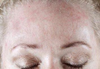 Si la peau sur le visage est bombardée, ce qu'il faut faire? Les causes de l'écaillage et les moyens de l'éliminer