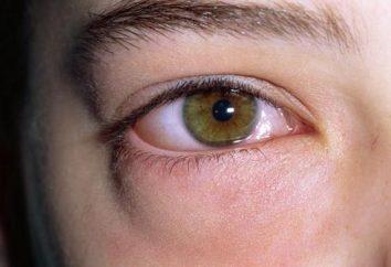 Se gli occhi gonfi, le cause possono essere diverse. Questo vale sia per gli adulti e per i bambini