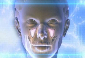 Was mit odontogene Sinusitis zu tun? Ursachen, Symptome und Behandlungen von Krankheiten