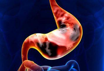 Perstnevidnokletochny cancro gastrico: sintomi, la prognosi, e le caratteristiche di trattamento