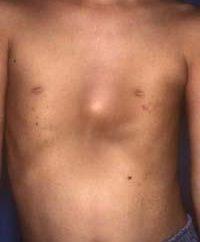 Odkształcenie klatki piersiowej w kształcie lejka: pochodzenie i konsekwencje