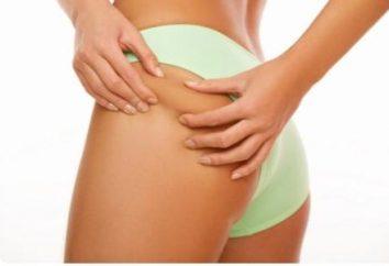 Enveloppements contre la cellulite – la clé d'un beau corps