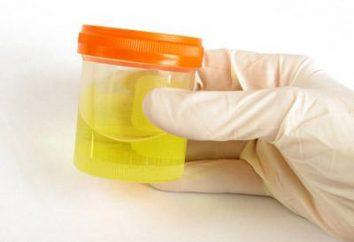 laboratorio indicatori di analisi: urina, pH – obiettivo e di deviazione. Come determinato dal pH delle urine? Dove fare il test (pH delle urine)?