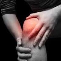 Tale malattia come l'artrite, l'articolazione del ginocchio è influenzata spesso