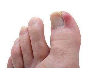 Durchaus üblich – wachsen Fußnägel. Was in diesem Fall zu tun?