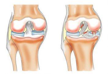 Tratamento de articulações com sal. A deposição de sais nas articulações: remédios populares tratamento