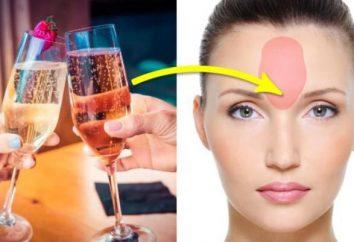 Quali problemi di salute possono verificarsi sul tuo viso?