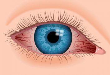 """ojo """"Iridina"""" cae: instrucciones de uso, análogos, opiniones"""