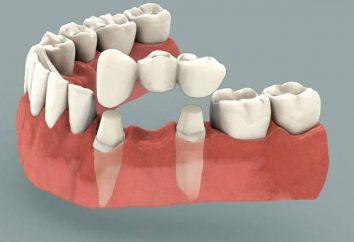 ponte dentale: recensioni. L'installazione di un ponte dentale