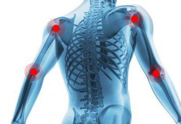 Cure per dolori articolari. Top pomate e pillole per il dolore alle articolazioni