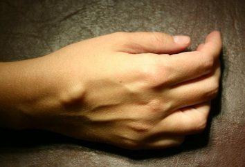 Zakłócając guzek na ręku? to hygroma