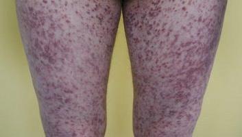 Ritzel auf ihren Füßen. Prävention. Behandlung