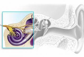 ipoacusia neurosensoriale: il grado di trattamento