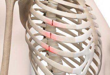 Premiers secours pour les fractures des côtes. Comment distinguer la blessure de fracture