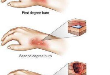 Verbrennungen: Verbrennungen Bereich von der Regel Palme definiert. Klassifikation von Verbrennungen auf das Gebiet und das Ausmaß der Schäden