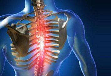 Scoliose du premier degré: causes et traitement